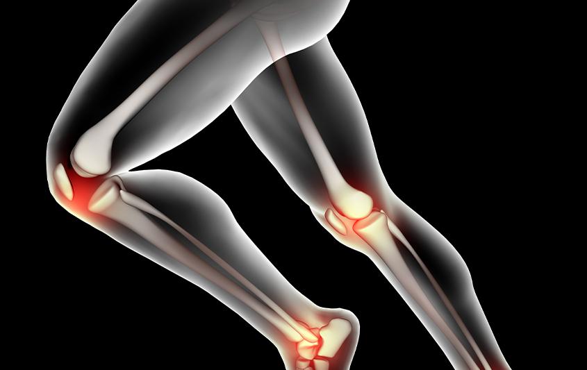 Estruturas ósseas e articulares do quadril e do fêmur