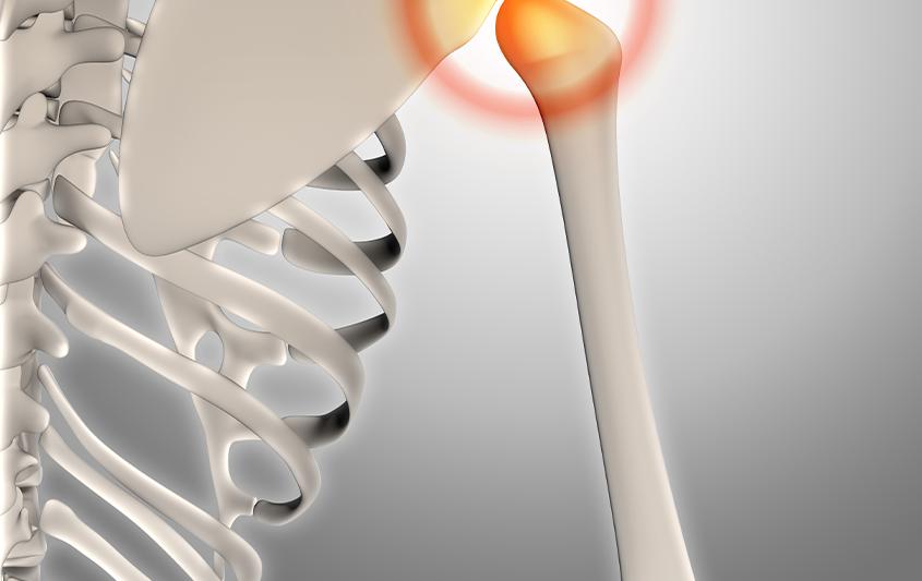 Estruturas ósseas e articulações da cintura escapular e do braço e antebraços